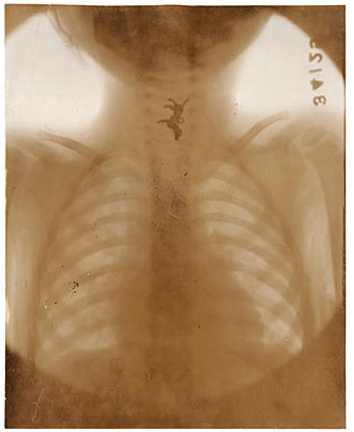 dog-in-throat-x-ray